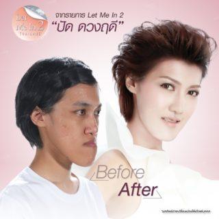 """ศัลยกรรมเปลี่ยนหน้า…ท้าชีวิตอาภัพ """"ปัด"""" Let Me In Thailand 2"""
