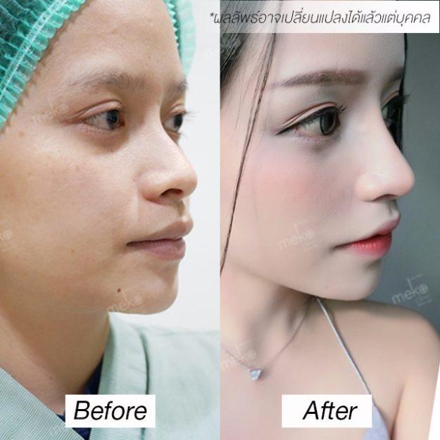 เสริมจมูก ทรงสโลปเผยมิติใหม่ของใบหน้า โดยแพทย์ศักดิ์ [คุณราเชล]